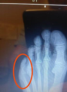 Sharp and Shooting Pain in the Little Toe: The Home Treatment