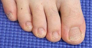 White chalky toenails from toenail polish