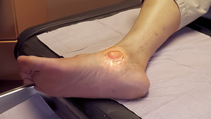 Foot & Ankle Granuloma: Causes, Symptoms & Best Treatment 2020!