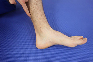 Achilles Tendonitis Heel Pain After Running