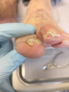 Severe Toenail Fungus Following Trimming and Cutting