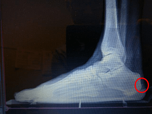 Achilles tendon bone spur back of the heel spur