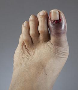 Throbbing Big Toe Pain At Night