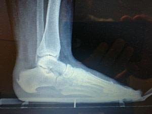 bottom of the heel spur from plantar fascia heel pain