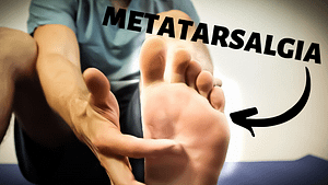 Metatarsalgia- Ball of the foot pain.