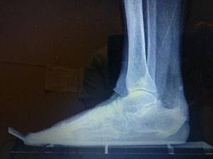 The Best Achilles Tendon Heel Pain Treatment for insertional heel spur