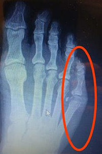 Sprained little toe or broken little toe