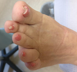 White Spots & White Chalky nails from toenail polish