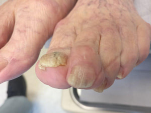 white superficial onychomycosis and toenail fungus