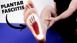 Foot Arch Pain: Causes, Symptoms & Best Treatment 2020