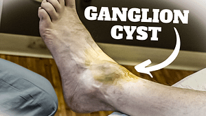 Ganglion Cyst of the big toe joint and ankle