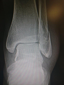 Ankle Surgery Recovery Time: Best Treatment 2020!