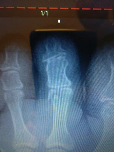 Chipped bone  in the foot or shin treatment