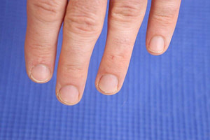 Fingernail free of nail fungus: No thick yellow fingernails