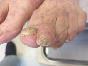 White toenail fungus or white chalky spots and streaks?