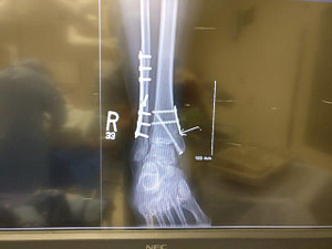 Ankle Fracture with hardware and fixation.
