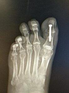 big toe joint hallux IPJ fusion surgery treatment hallux