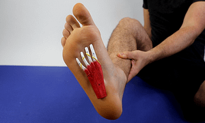Flat Feet Surgery Pros and Cons: Best Treatment at Home 2020
