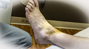 Ganglion cyst big toe joint drainage