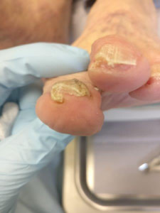 Curved Toenail Treatment: *Causes & Best Fungus Cure 2019*