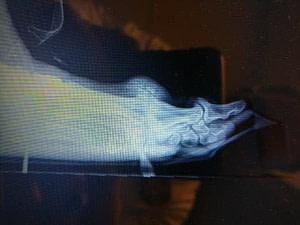 Severe hallux rigidus big toe joint arthritis