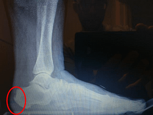 Insertional Achilles tendon heel spur and back of heel spur