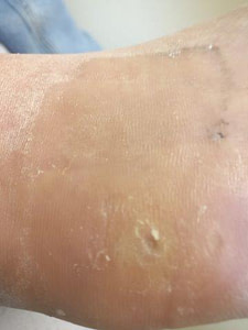 Heloma durum on the foot home treatment