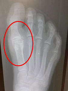 Hallux rigidus big toe joint arthritis