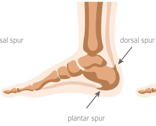 Bottom and back of the heel spurs