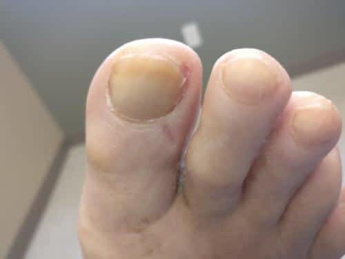 Ingrown toenail between the inner big toe and 2nd toe.