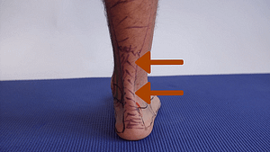 Insertional Achilles tendinitis pain back of the ankle rubbing