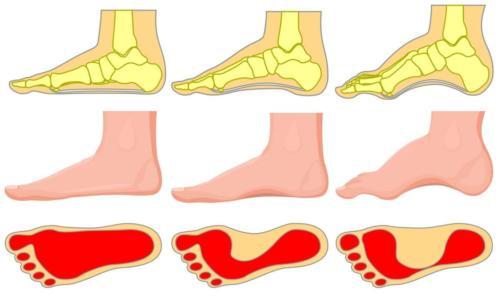 Cavus foot type vs pes planovalgus foot type heel pain