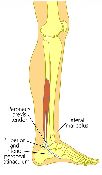 Peroneus Brevis Anatomy Peroneus Brevis Tendonitis