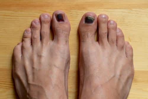 Big toenail black and red