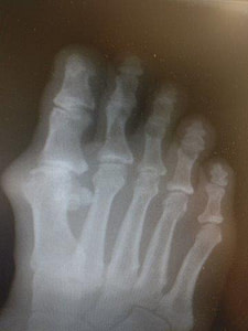 Big toe joint arthritis hallux rigidus