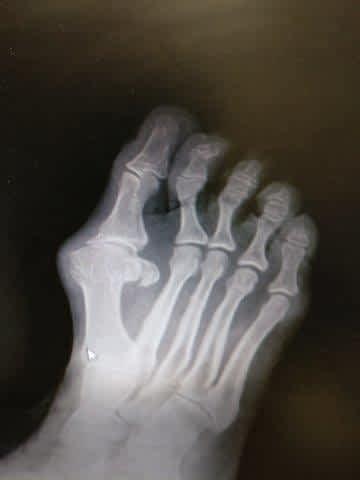 bunion hallux valgus hallux rigidus big toe joint arthritis