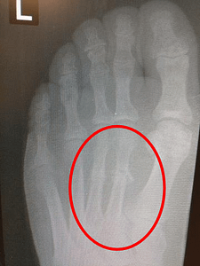 Metatarsal stress fracture foot stress fracture