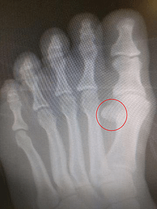 Dislocated sesamoid, sesamoiditis, chronic sesamoiditis