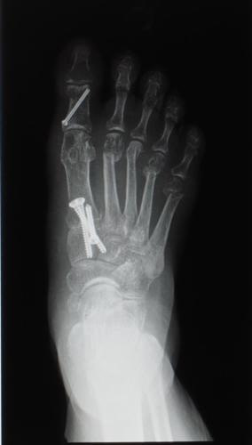 After bunion xray