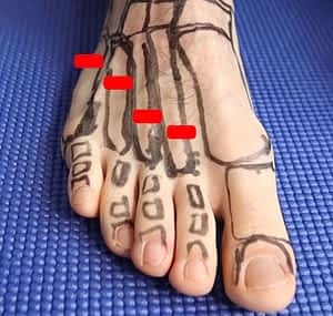 Most common metatarsal stress fracture sites