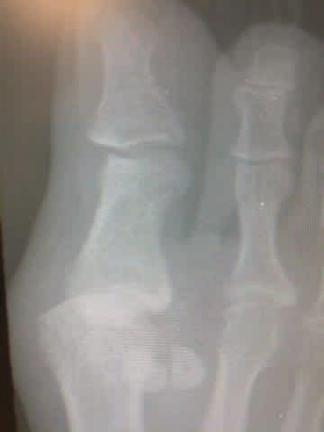 dislocated 1st MTPJ metatarsal phalangeal joint dislocation bunion