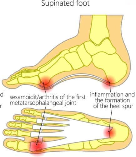 High arch foot pain