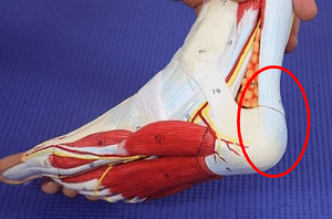 Insertional Achilles tendonitis heel spur pain