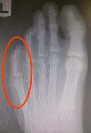 Sharp shooting pinky 5th toe pain causes