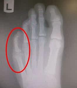 Sprained pinky toe sprained pinkie tie broken pinky toe