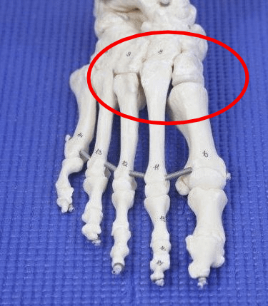 Bone Spur on top of the foot causes
