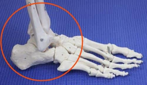 Ankle Ligament sprain on the outside of the ankle