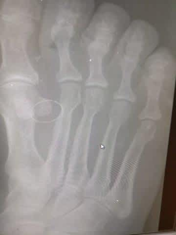 sesamoid dislocation and bunion of the big toe joint