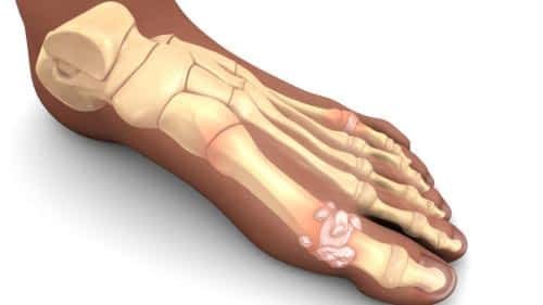 Gout foot joint big toe attack