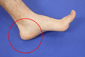 Painful Swelling on the Sole of the Foot: [Causes & Best Treatment]